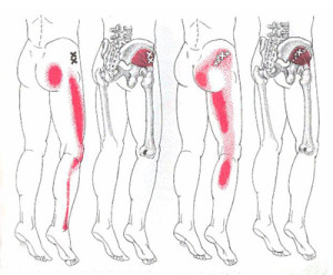 The pain referral patterns of gluteus medius (right) and minimus (left)