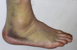 how to fix a bad sprain
