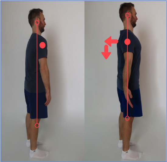 Downtown Toronto Chiropractor Shoulders Back and Down Dr Alex Ritza